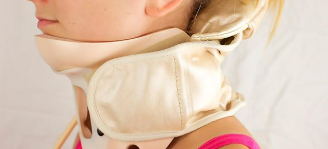 Cмещение шейных позвонков симптомы и лечение