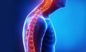Кифоз позвоночника — симптомы и лечение