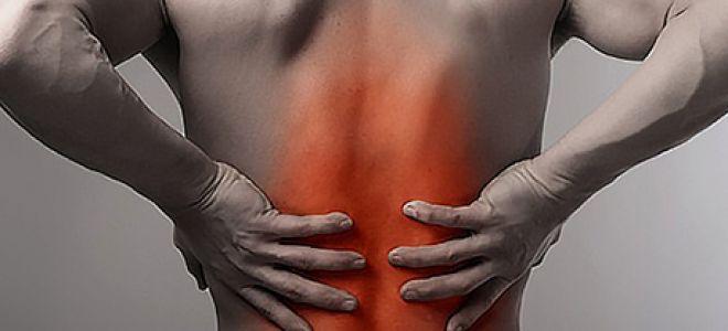 Причины появления и симптомы радикулопатии