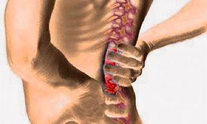 Симптомы и медикаментозное лечение поясничного радикулита