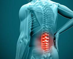 Поясничный радикулит — cимптомы и лечение.