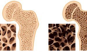 Степени остеопороза костей человека