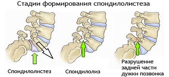 Стадии спондилолиза позвоночника