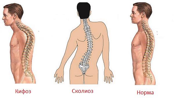 Искривление позвоночника в области шеи как лечить